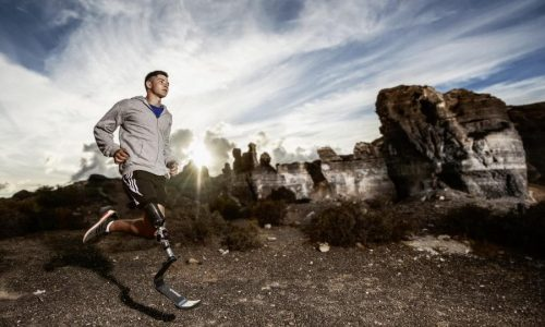 1E91 Runner in Action. Image -Ottobock.